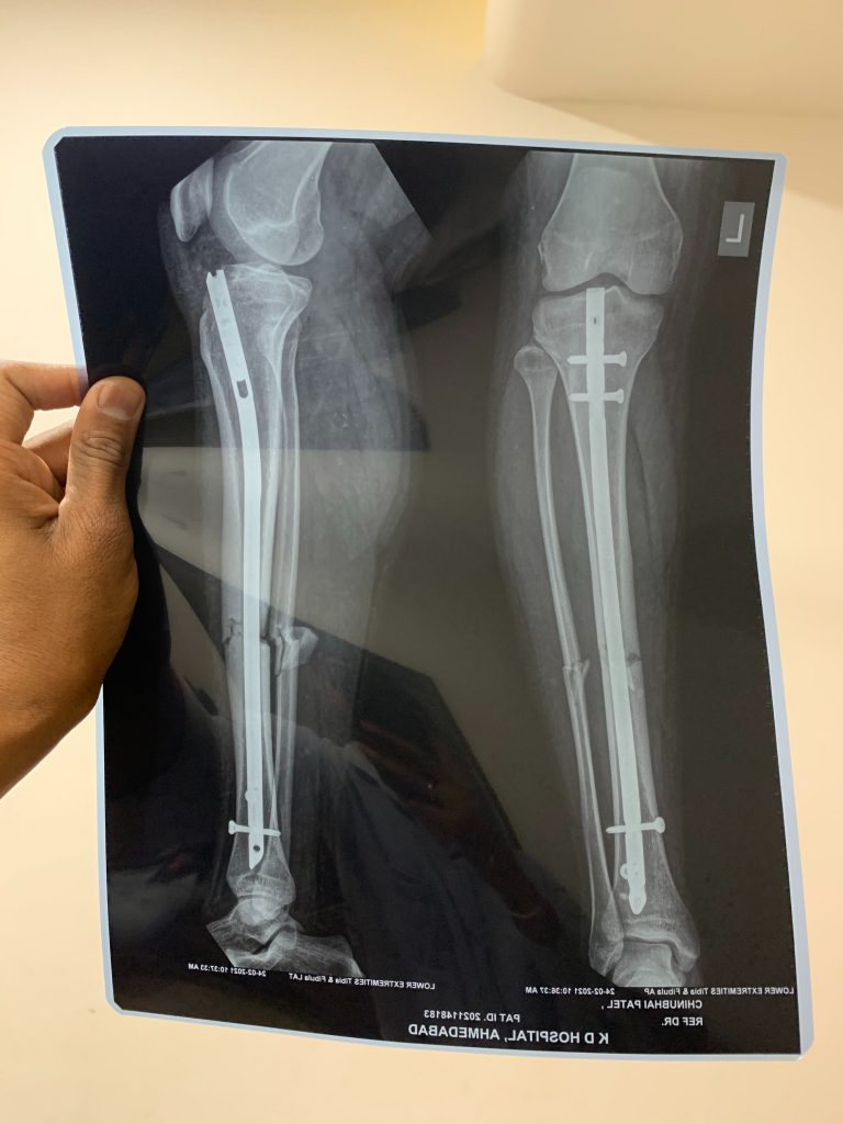 A hand holding up an X-ray image of a broken bone from two angles. The bone has a metal attachment to aid in healing.